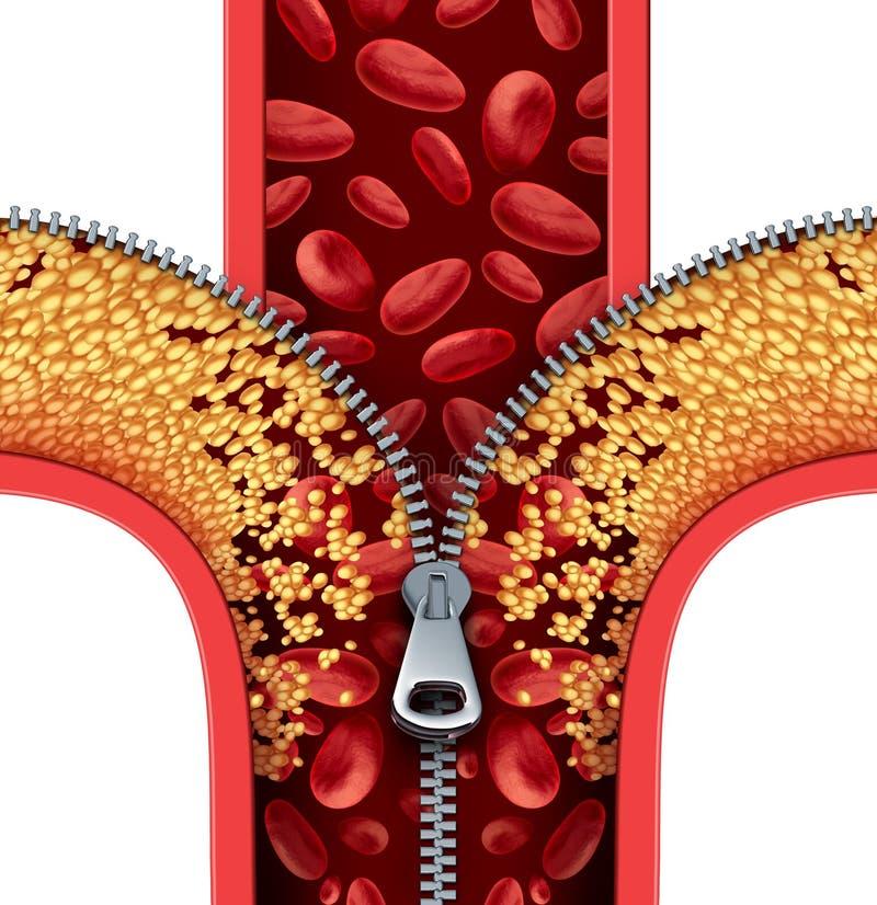 Atherosclerosetherapie stock illustratie