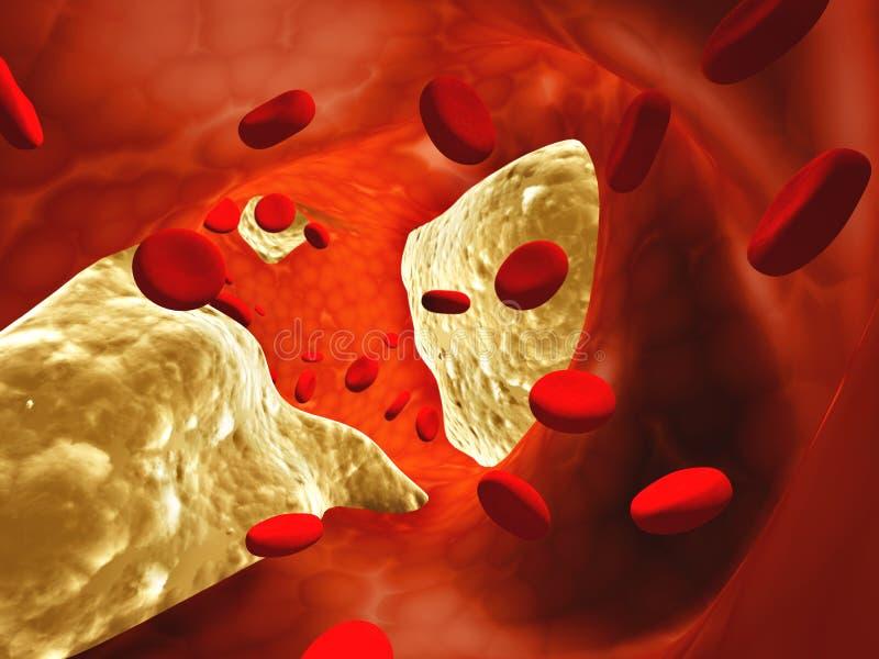 atherosclerosis διανυσματική απεικόνιση
