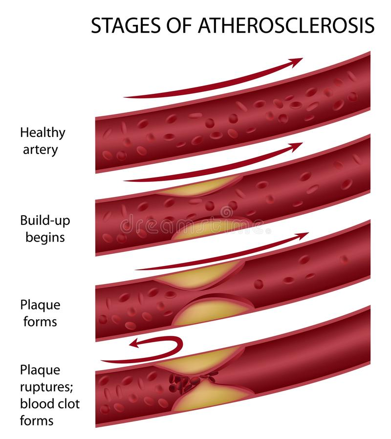 atherosclerosis vektor illustrationer