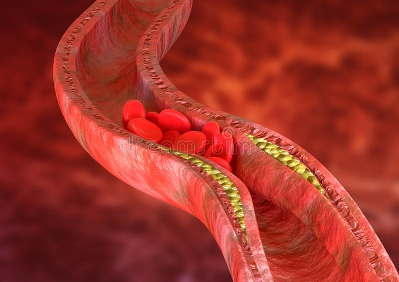 Atherosclerosis is an accumulation of cholesterol plaques in the walls of the arteries, which causes obstruction of blood flow vector illustration