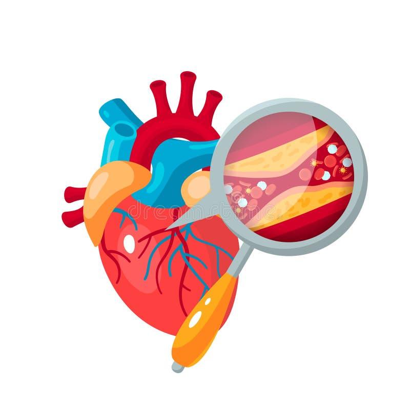 Coronary artery disease concept in flat style stock illustration