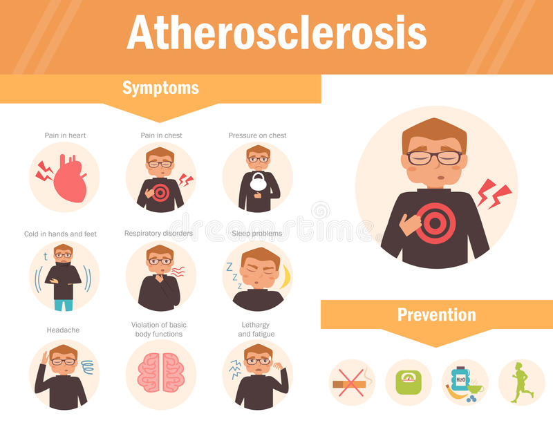 Atherosclerosis. Symptoms. Vector. stock illustration