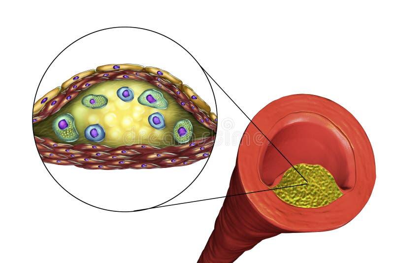 Atherosclerotic plakieta w ludzkiej arterii royalty ilustracja