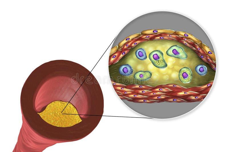 Atherosclerotic plakieta w ludzkiej arterii ilustracja wektor