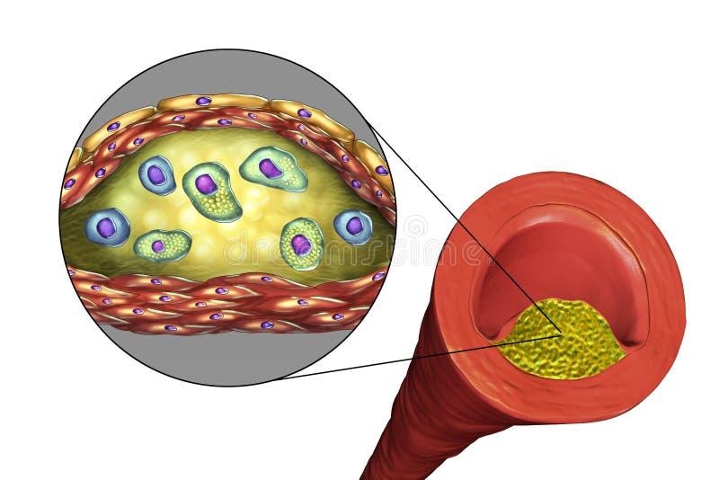 Atherosclerotic plakieta w ludzkiej arterii ilustracji