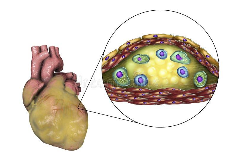 Atherosclerotic plakieta w wieńcowym naczyniu krwionośnym otyły serce, ilustracja royalty ilustracja