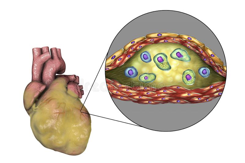 Atherosclerotic plaque in coronary blood vessel of obese heart, illustration. Atherosclerotic plaque in coronary blood vessel of obese heart, 3D illustration royalty free illustration