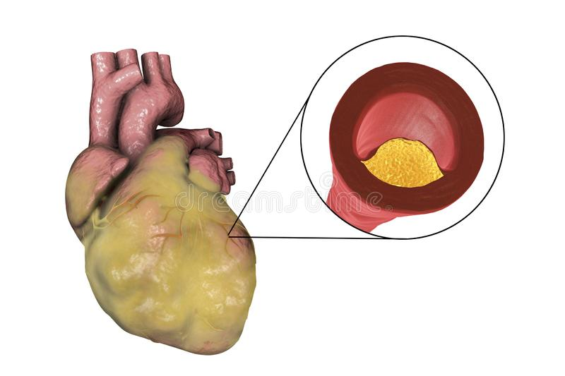 Atherosclerotic plaque in coronary blood vessel of obese heart, illustration. Atherosclerotic plaque in coronary blood vessel of obese heart, 3D illustration vector illustration