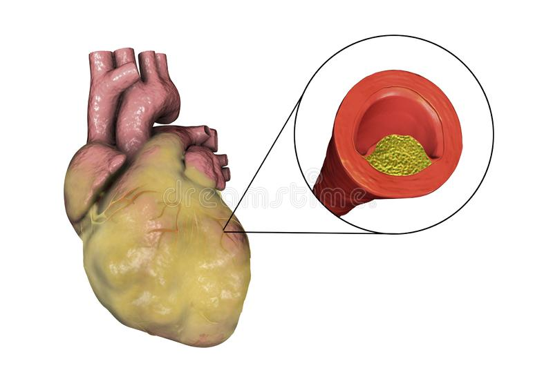 Atherosclerotic plaque in coronary blood vessel of obese heart, illustration. Atherosclerotic plaque in coronary blood vessel of obese heart, 3D illustration stock illustration