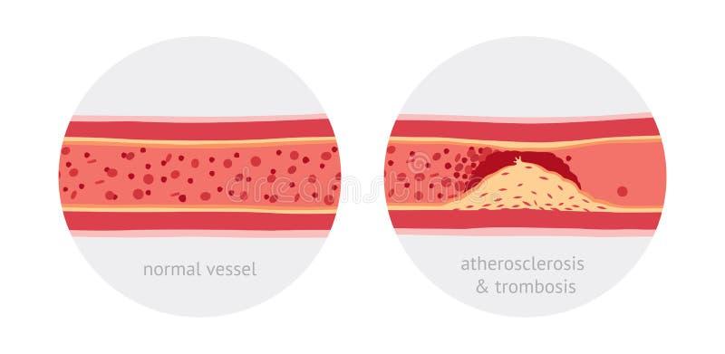 Atherotrombosis dans des navires illustration libre de droits