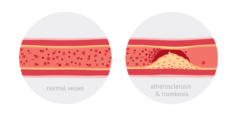 Atherotrombosis i skyttlar royaltyfri illustrationer