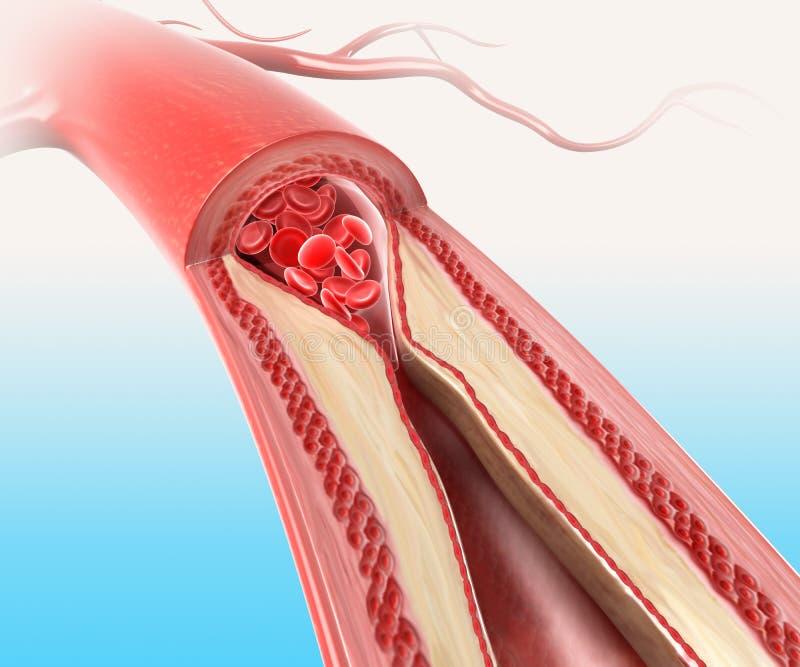 Athersclerosis en arteria stock de ilustración