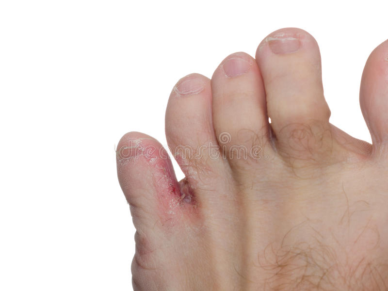 Athlete's foot (tinea pedis) royalty free stock photo