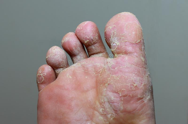 Athlete`s foot - tinea pedis, fungal infection royalty free stock photos
