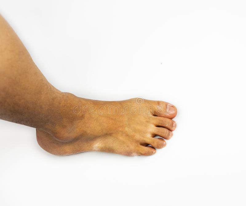 Athlete`s foot or tinea pedis, on side foot and leg on white background royalty free stock photos