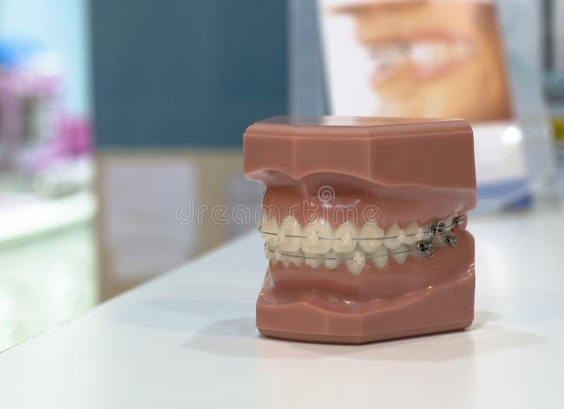Atmosfär klinik som är tand-, tandproteser, utrustning, illustration, implantat, material, ortodonti, prövkopior, tänder fotografering för bildbyråer
