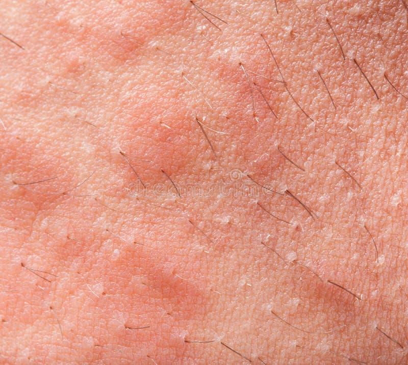 Atopic dermatit för eksem royaltyfria bilder