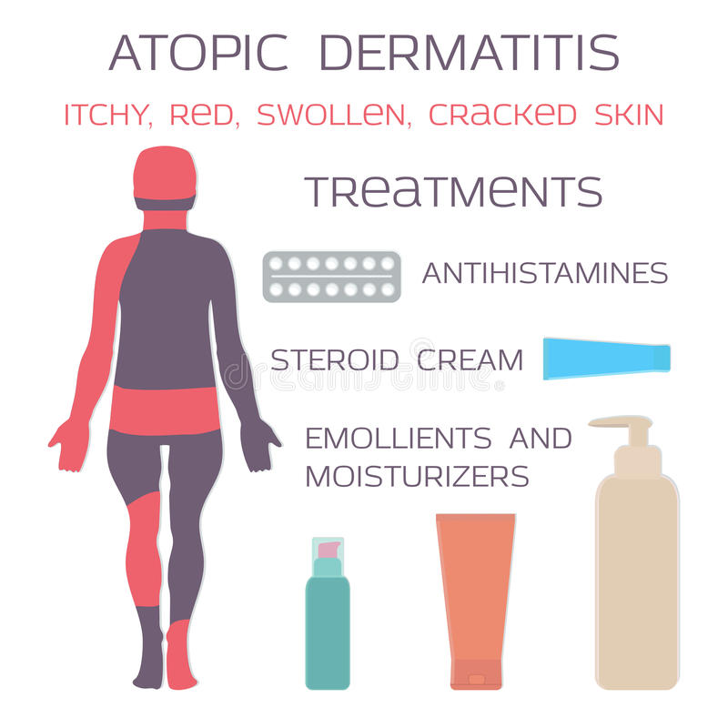 Atopic dermatitis, egzema Lekarstwo jest antyhistamin pastylkami i steryd śmietankami ilustracji