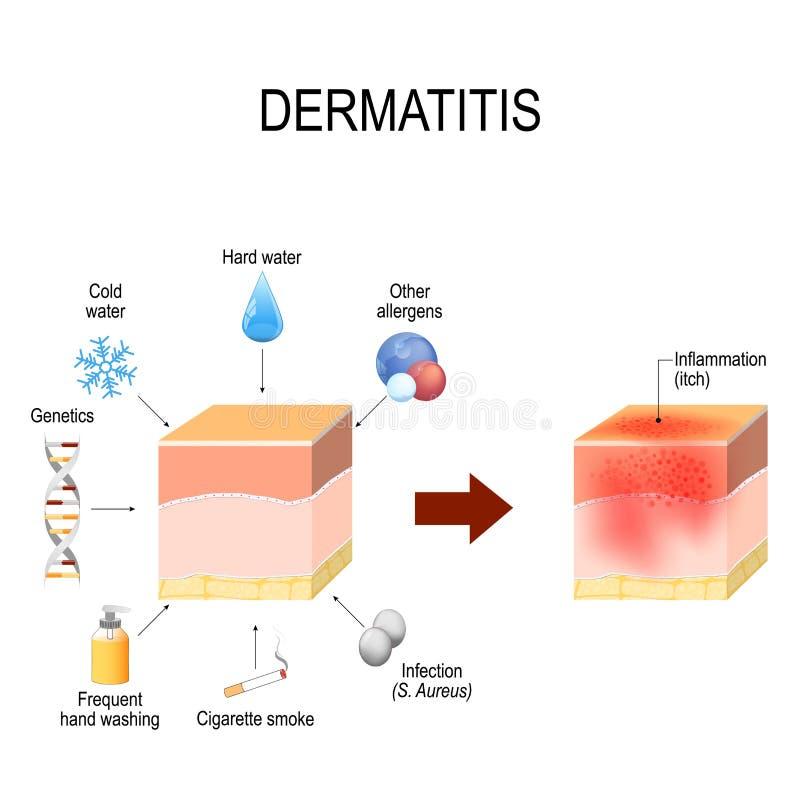 Atopic dermatitis atopic egzema wskazuje czynniki ten przyczyny chorobę C ilustracji