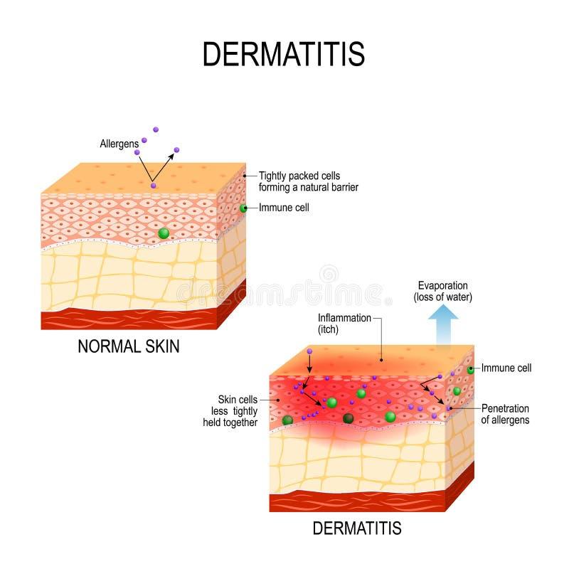 Atopic dermatitiseczema vector illustratie