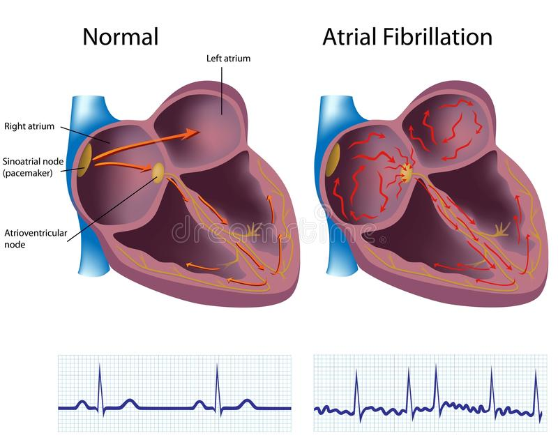 atrial fibrillation vektor illustrationer