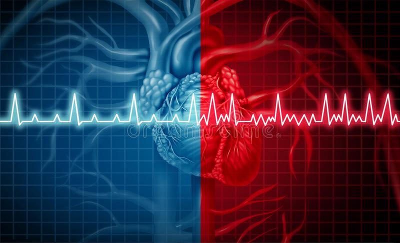 Atrial Fibrillation Medyczny problem zdrowotny royalty ilustracja