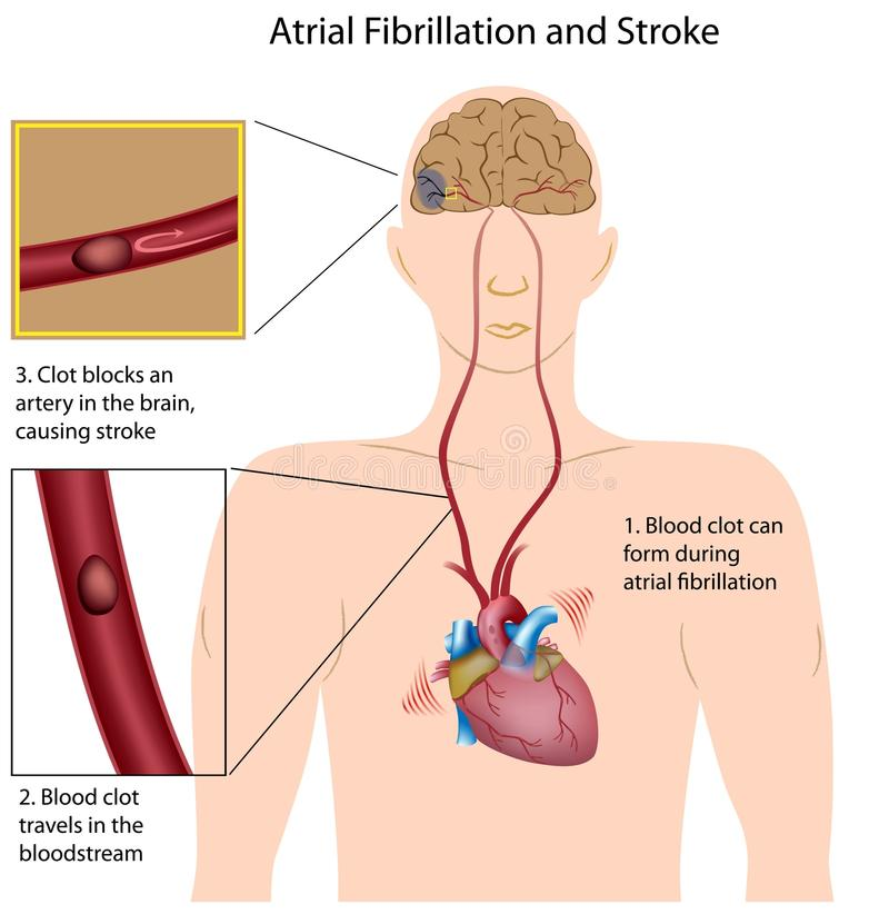 Atrial fibrillation and stroke stock illustration