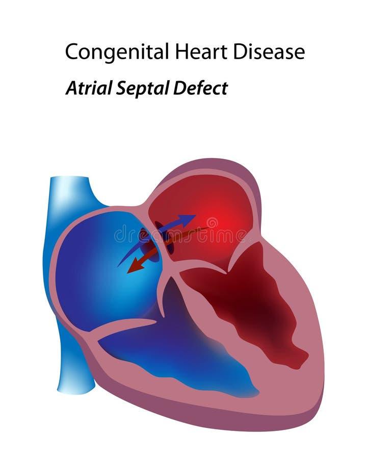 Atrial septumtekort vector illustratie