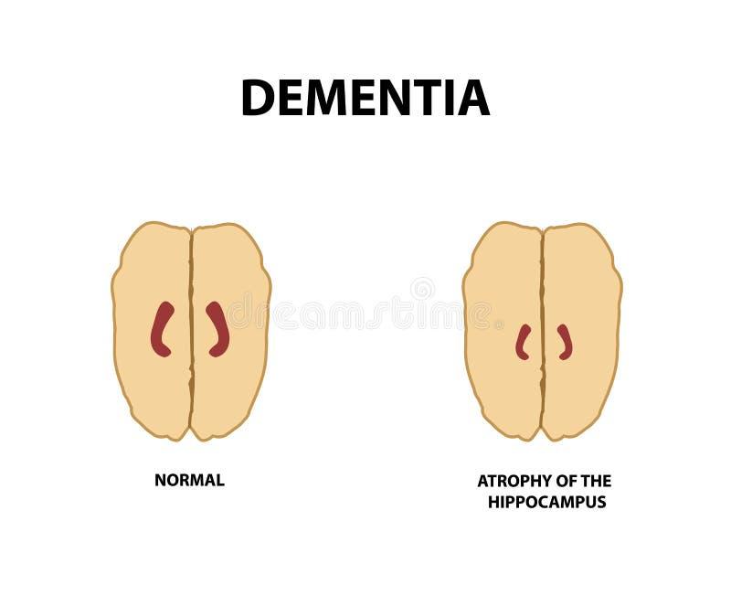 Atrophie des Hippokamps dementia Alzheimer-` s Krankheit Vektorillustration auf einem lokalisierten Hintergrund stock abbildung