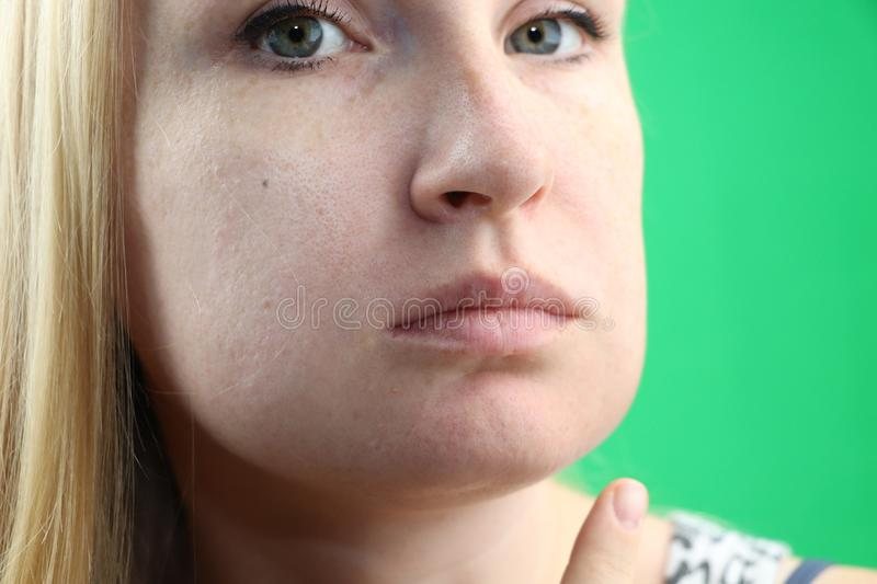 Teeth Problem. Gumboil, flux and swelling of the cheek. Closeup Of Beautiful Sad Girl Suffering From Strong Tooth Pain. Attractive. Attractive Female Feeling stock photo
