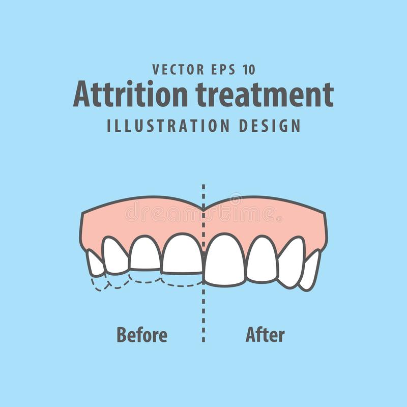 Attrition treatment comparison illustration vector on blue background. Dental concept. vector illustration