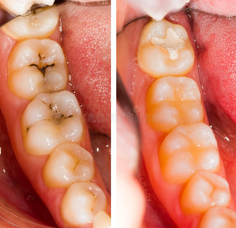 Au dentiste photo stock