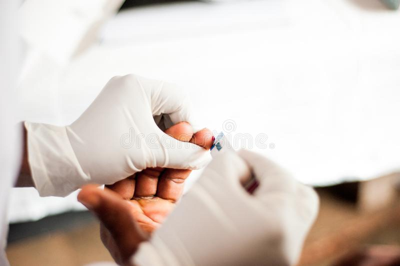 Au-dessus de la vue du doigt de saignement après piqûre pour l'essai gratuit d'HIV dans l'hôpital africain photo stock