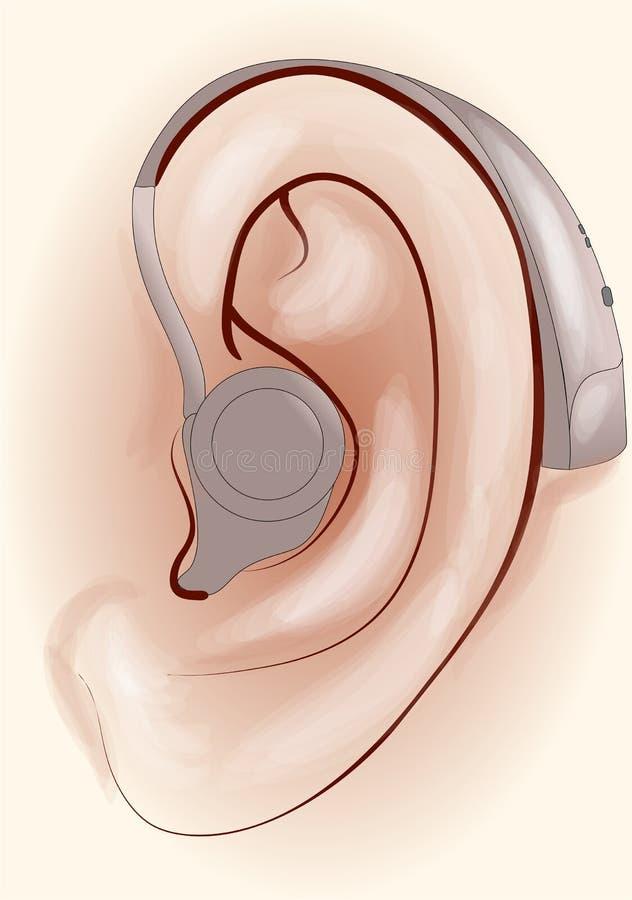 Audífono stock de ilustración