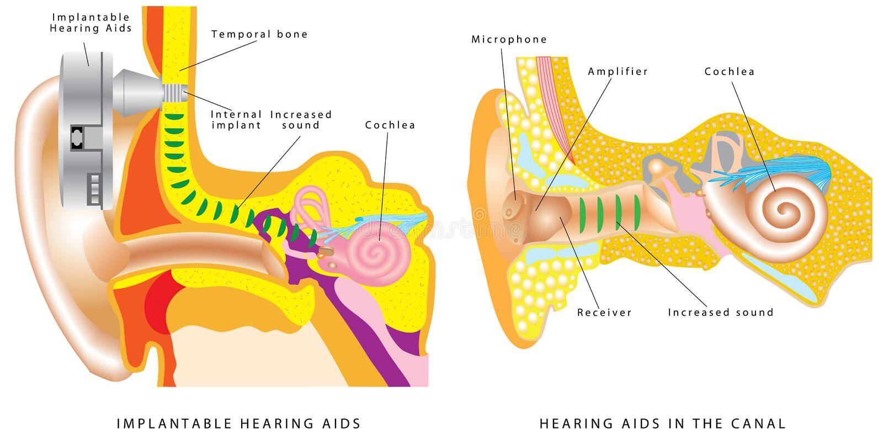 Audífono del oído ilustración del vector