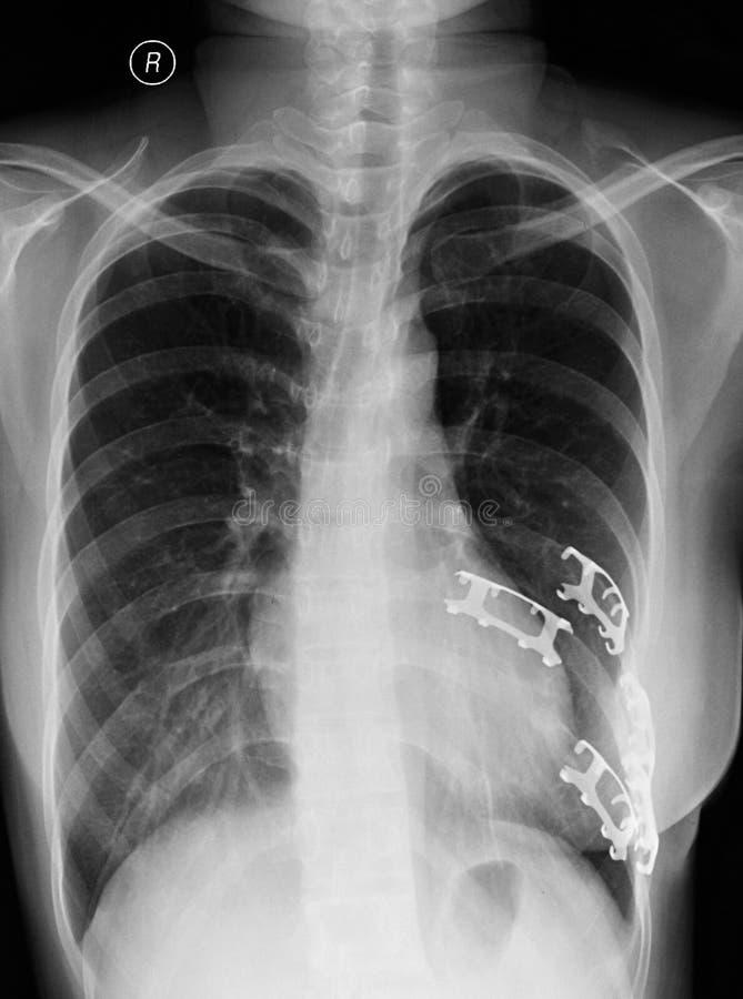Auf der linken Seite der Kastenrippenbrüche stockfotografie