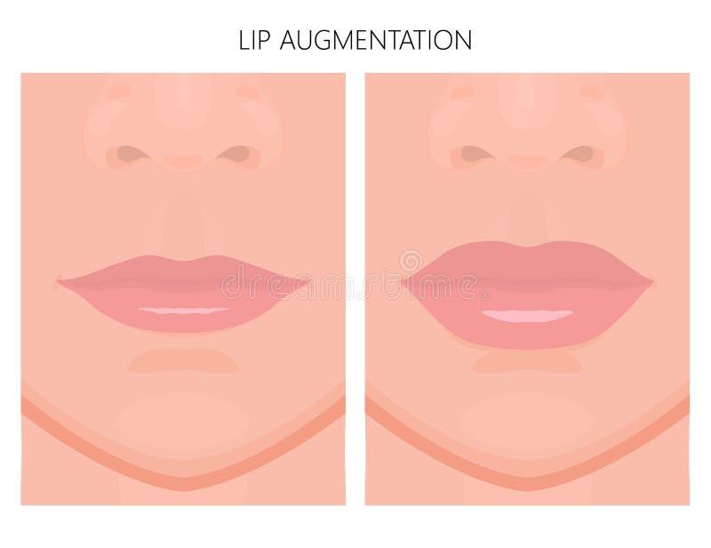 Augmentation de front_Lip de visage illustration stock