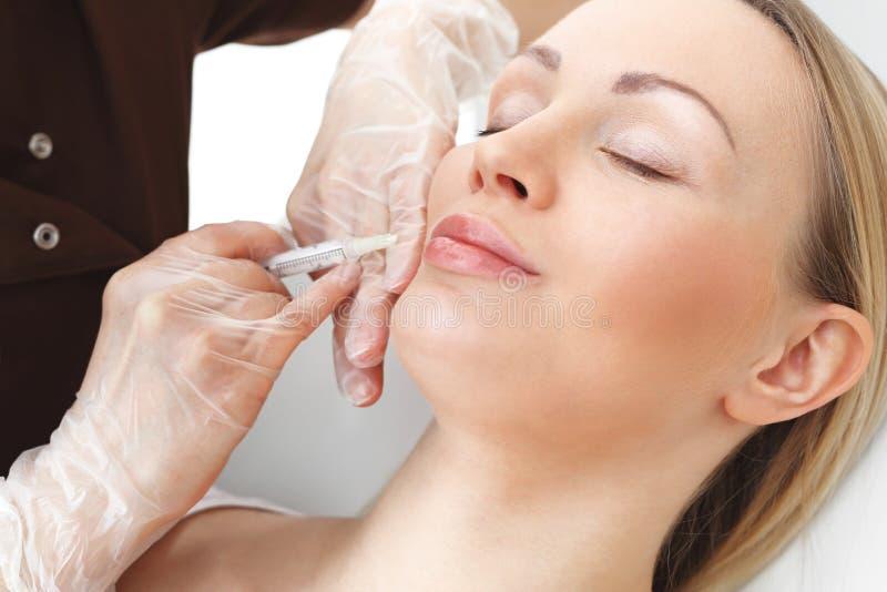 Augmentation de lèvre avec de l'acide hyaluronique photos libres de droits