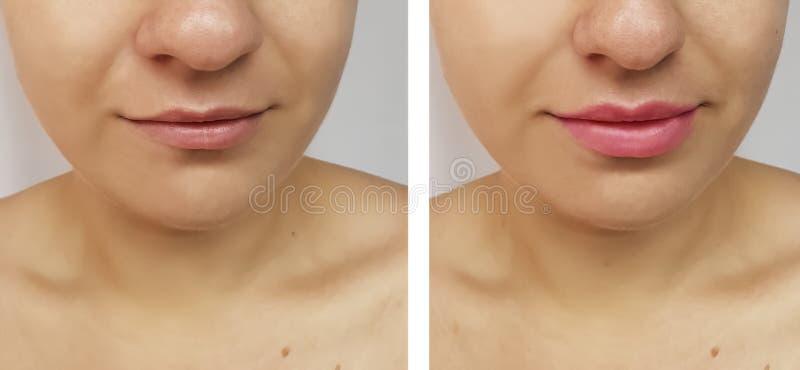 Aumento de los labios de la muchacha antes y después imagenes de archivo