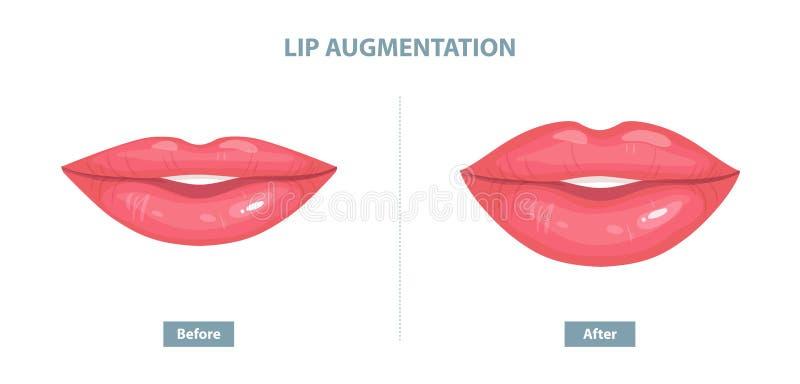 Aumento del labbro Prima e dopo le iniezioni del riempitore del labbro Vettore illustrazione di stock