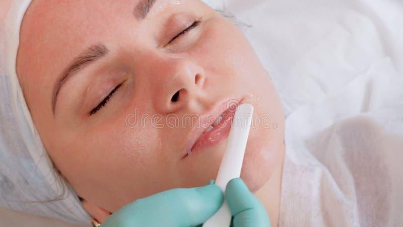 Aumento del labio con el gel ?cido hialur?nico El cosmet?logo utiliza un palillo blanco en los labios de la muchacha Tratamientos imagen de archivo libre de regalías