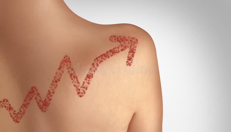 Aumento en casos del sarampión ilustración del vector
