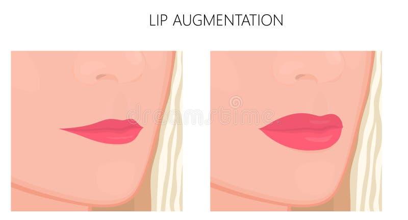 Aumento plástico do surgery_Lip ilustração stock