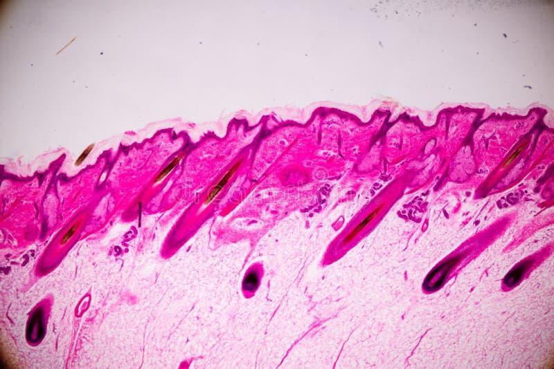Ausbildungsanatomie und Physiologie der menschlichen Kopfhautshow von Haar folticles unter dem mikroskopischen lizenzfreies stockbild