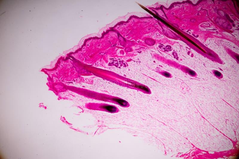 Ausbildungsanatomie und Physiologie der menschlichen Kopfhautshow von Haar folticles unter dem mikroskopischen stockfoto