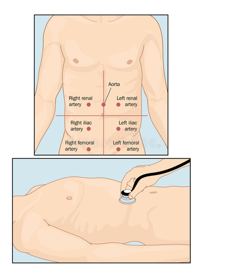 Auscultation abdominale illustration libre de droits