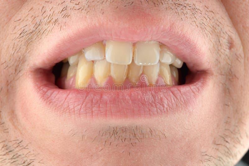 Ausführliches Bild des Mannes seine Zähne zeigend Zahnmedizinische Gesundheitspflege Hyg lizenzfreies stockbild