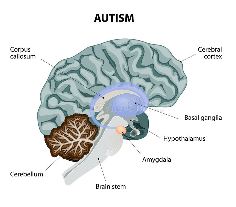 Autism. Parts of the brain affected by autism. Vector diagram royalty free illustration