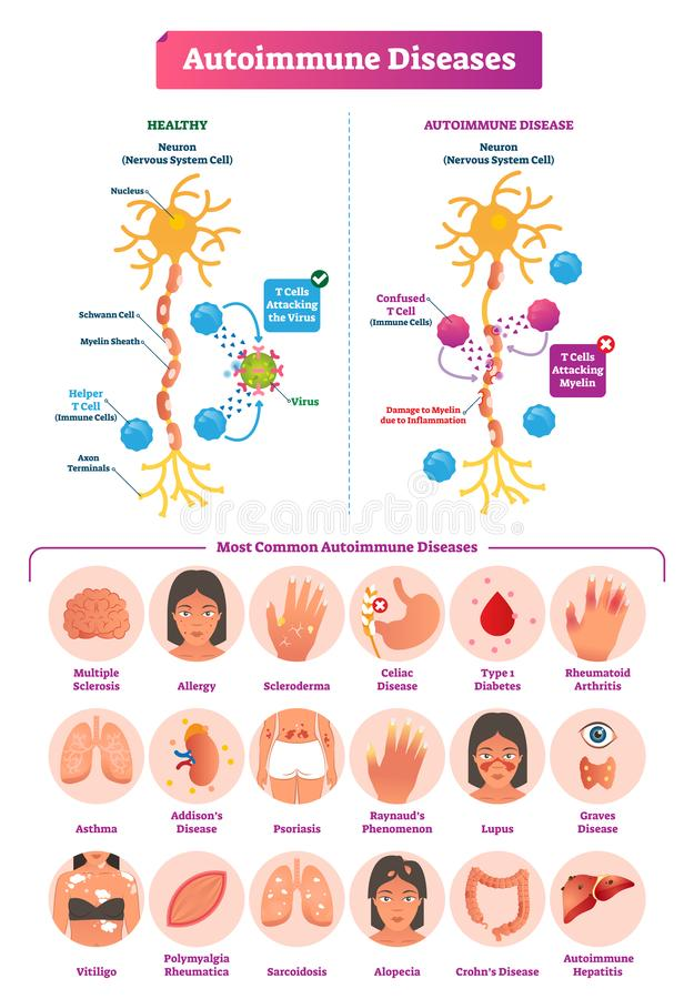 Autoimmune diseases vector illustration. Various illness collection set. stock illustration
