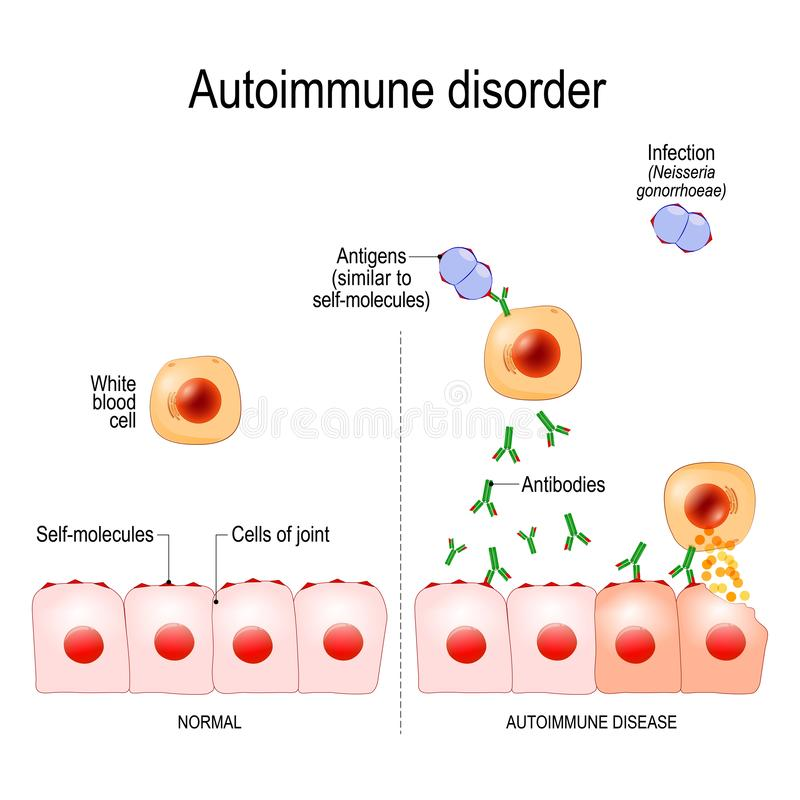 Autoimmune disorders. Antigens of bacterium Neisseria gonorrhoeae are similar to self-molecules of healthy joint cells. Autoimmune disorders. For example stock illustration